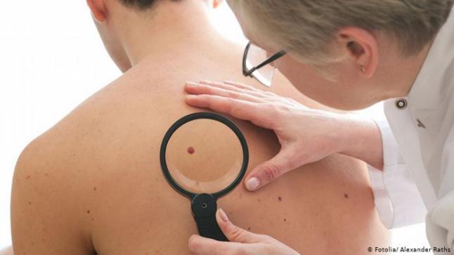 دراسة جديدة.. عقاقير تحمي من الاصابة بسرطان الجلد