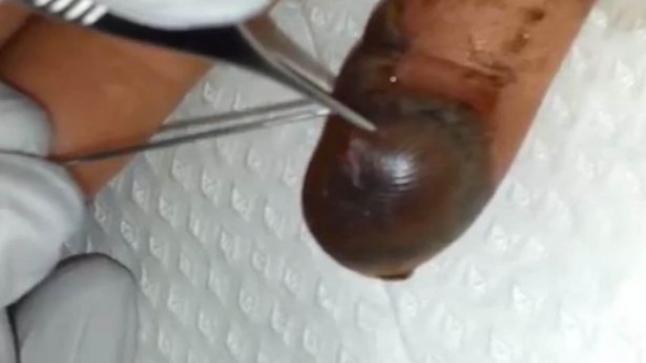 فيديو | لقطات مروعة تظهر ذوبان لحم الأصبع بسبب لدغة ثعبان سام