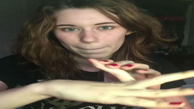 فيديو   أمريكية تثني أصابعها إلى الخلف دون أن تشعر بأي ألم