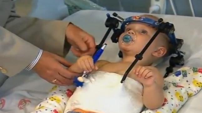 نجاح عملية إعادة رأس طفل إلى رقبته بعد أن فُصل في حادث سير مروع