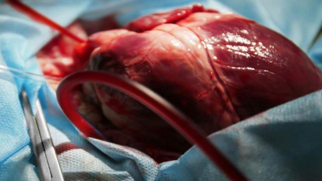 الغذاء والدواء الأمريكية تصدّق على أول صمام قلب غير جراحي